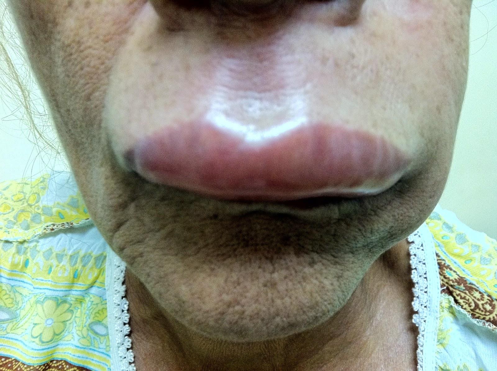 Angioedema hereditario por bajo nivel de factor C1 inhibidor