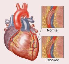 cara mengobati jantung koroner tanpa operasi