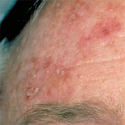 rough draft skin cancer Skin cancer is the most common type of cancer in the united states about half of all americans who live to 65 will have skin cancer although anyone can get skin cancer, the risk is greatest for.