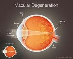 Symptoms,Risk, Detect and Treatment for Age-related macular degeneration (AMD)
