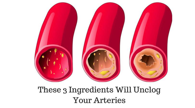 Podostryj la thrombose des veines profondes le traitement