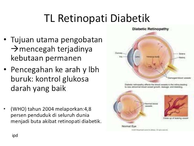 Komplikasi Diabetes - Cara Mengobati Diabetes Alami | Obat Diabetes Alami