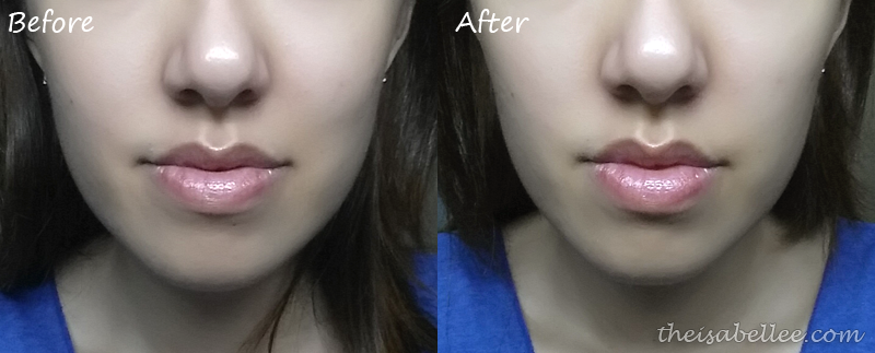 Results from SF Beauty Skin Absolute V-Lifting Serum