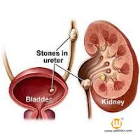 obat herbal penyakit batu ginjal