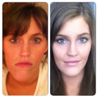 orthognathic surgery blog 2013 recovery jaw surgery double jaw surgery corrective jaw surgery jaw pain swelling underbite to overbite braces risks complications with jaw surgery before and after jaw surgery images