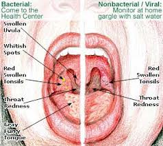 Natural Remedy For White Spots On Tonsils