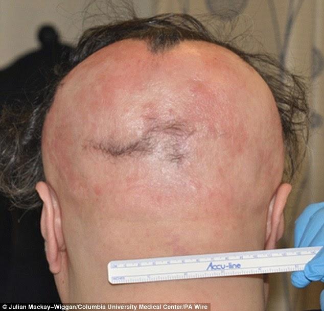 صورة لرأس مريض قبل العلاج