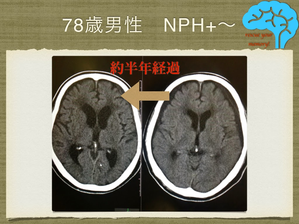 特発性正常圧水頭症とレビー小体型認知症の合併