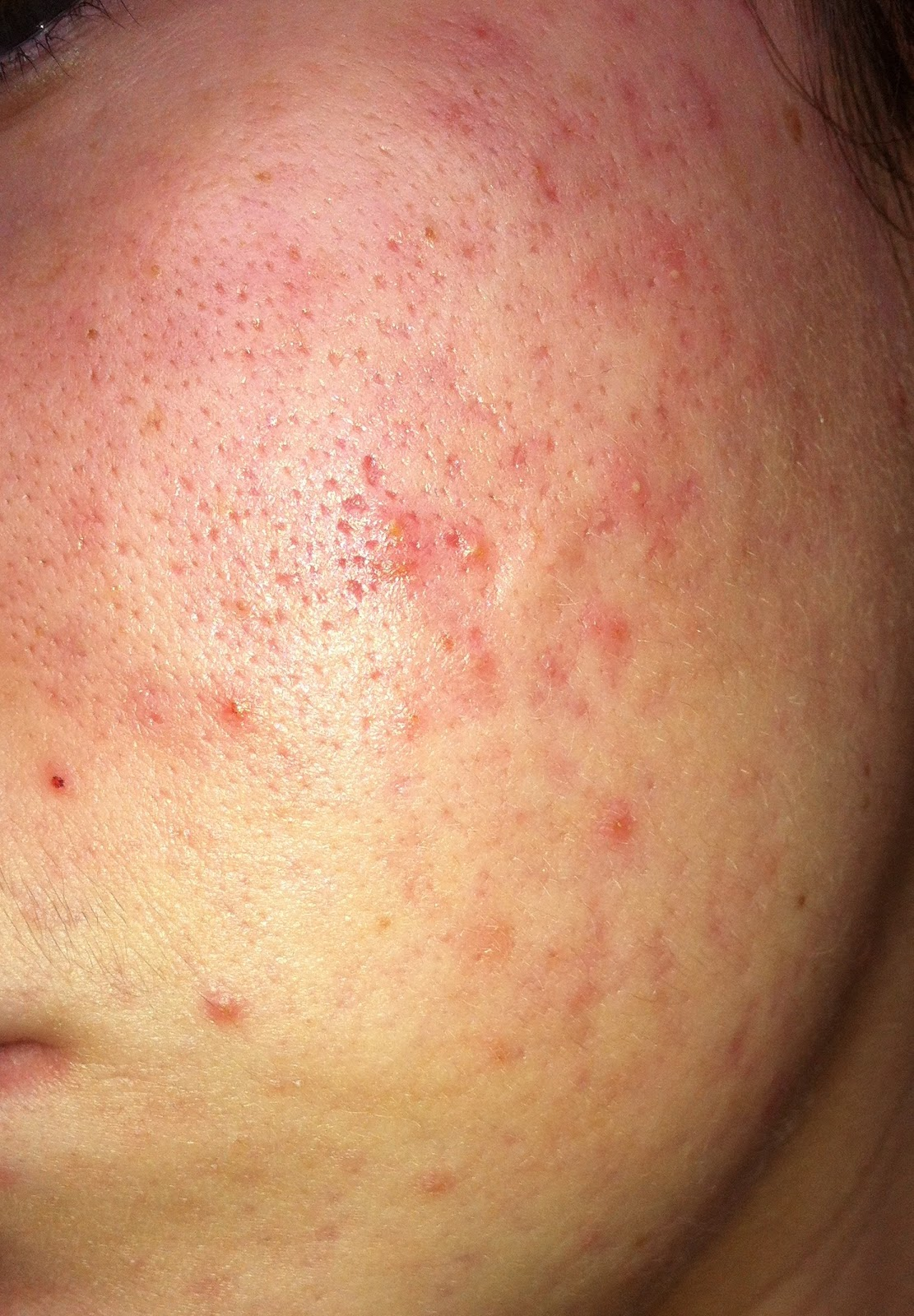 Roaccutane - Week by Week: octobre 2012