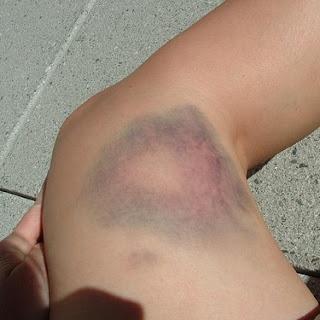 Gambar memar, benturan, luka memar, luka benturan, kulit biru