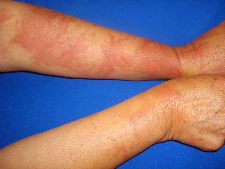 Crema per le mani a dermatite atopic ad aridità nonormonale
