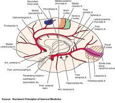 stroke neglect left side