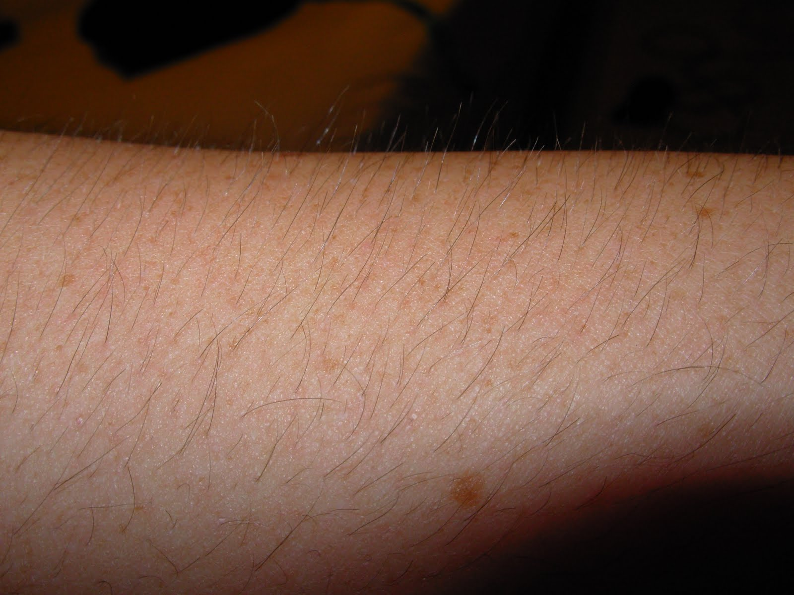 how to make arm hair lighter