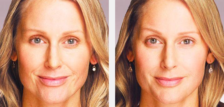 Nasal Fold Eliminating Using Facial Aerobics Exercise Methods