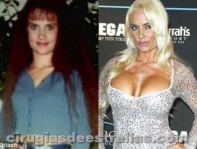 Coco Austin antes y después