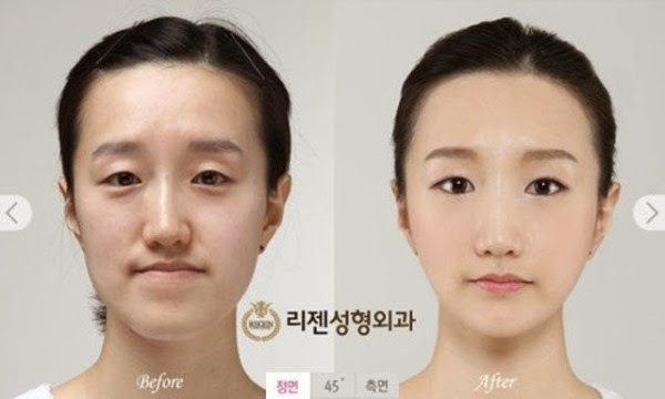 Young Koreans Before And After Extreme Plastic Surgery