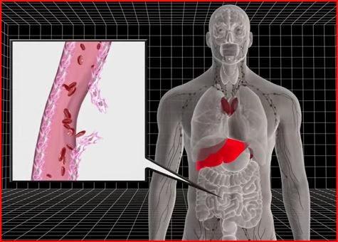 Ebola Virus animatedfilmreviews.filminspector.com