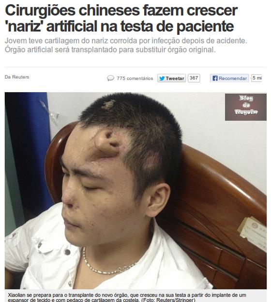 Blog do Naguim: Cirurgiões <b>chineses</b> fazem crescer &#39;<b>nariz</b>&#39; na <b>testa</b> <b>...</b> 2014