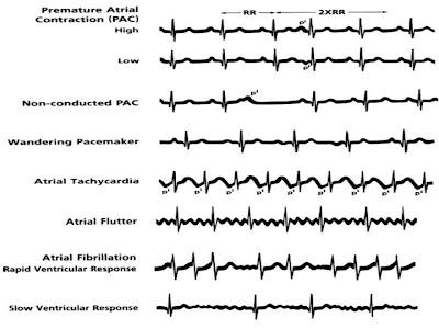 Atrial Fibrilasyon EKG