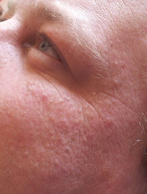 Environ Skin Peel Week 2