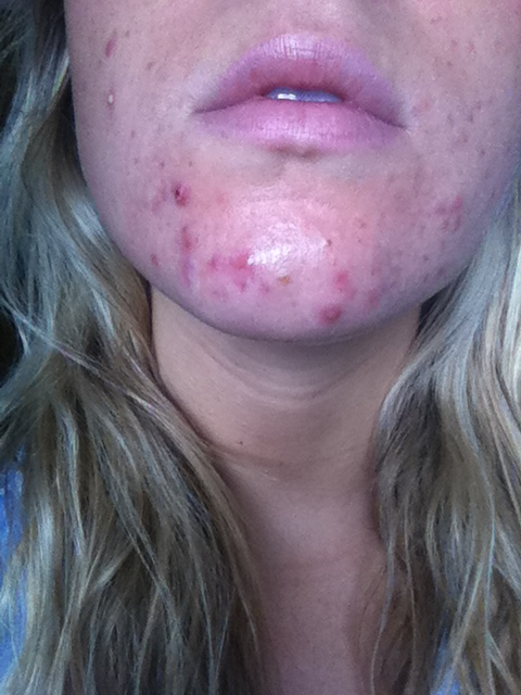 how to clear up bad acne