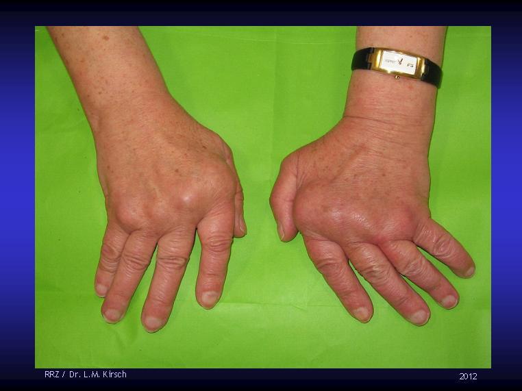 arthrose finger wikipedia