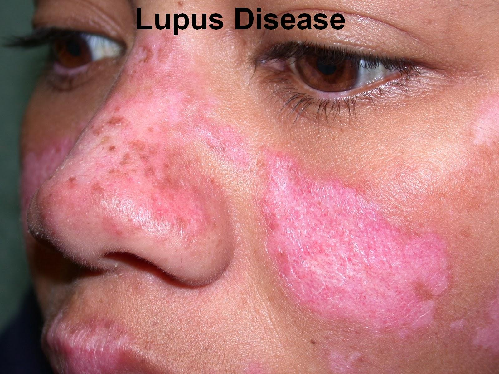 Lupus - what kind of disease Causes, symptoms, treatment of lupus