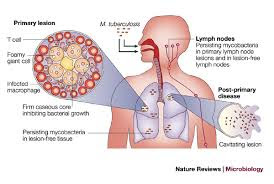 virulencia de mycobacterium tuberculosis: