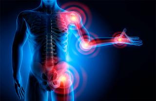 Principais fatores de risco para Artrose