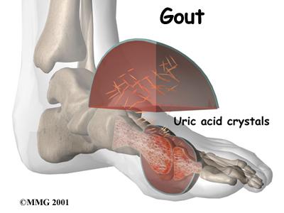 masalah gout kronik