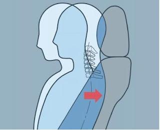 Hệ thống ghế ngồi giảm chấn thương đốt sống cổ
