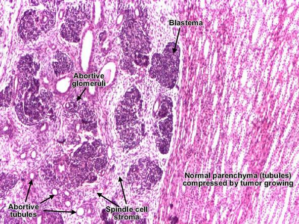 cancerous tumor neruroblastoma essay