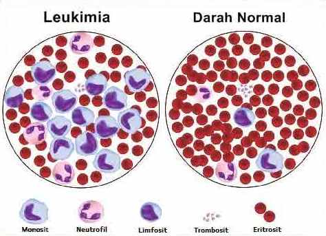 Image result for penyakit leukimia