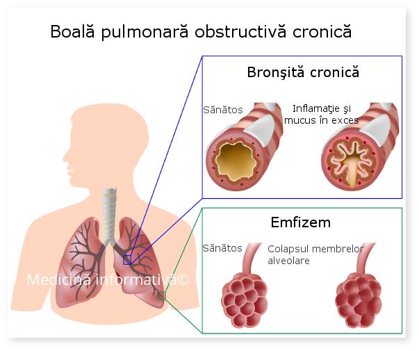 Tratamente naturiste pentru bronsita cronica obstructiva
