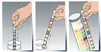 Prosedur pemeriksaan urin metode carik celup