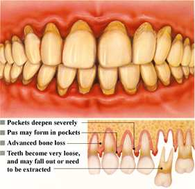 Periodontal Associates