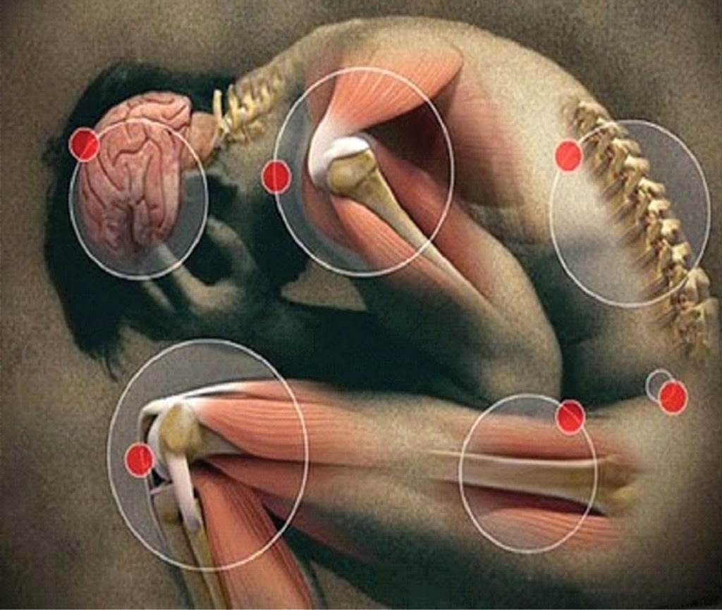 dor+articular+muscular+inflama%C3%A7%C3%