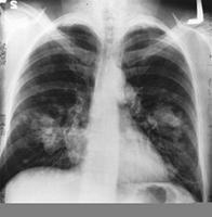 Carcinoma microcítico de pulmón
