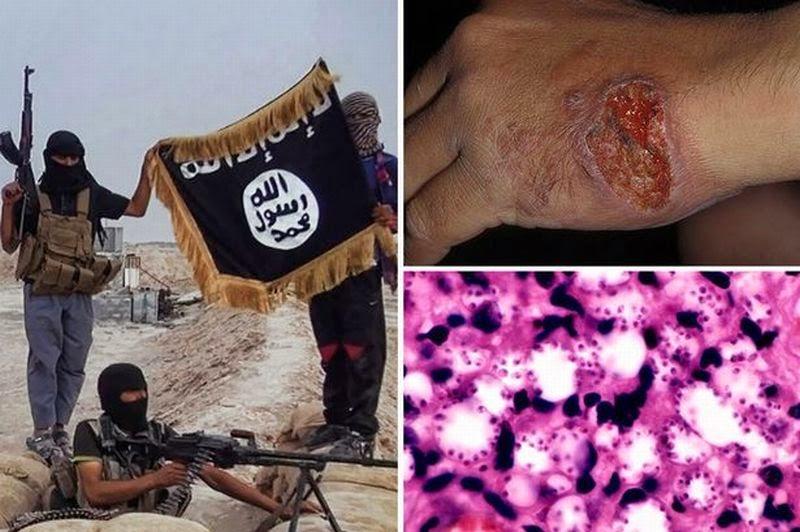 Penyakit Leishmaniasi Mematikan yang Sedang Menyerbu ISIS