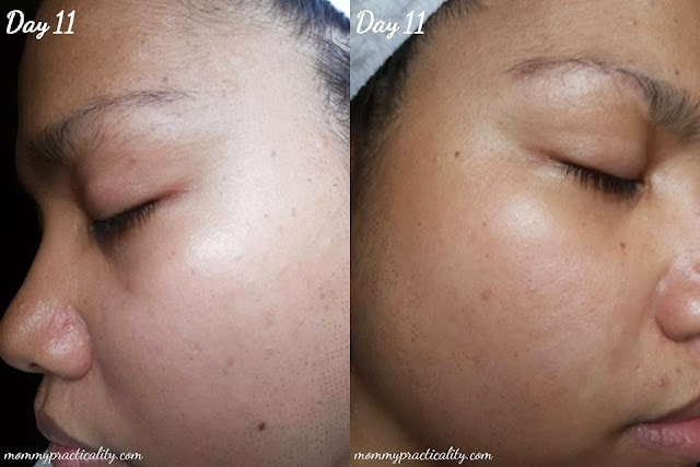 eMatrix Sublative Rejuvenation Treatment