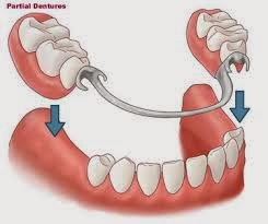http://www.dentistinchennai.com/removable-denture.php