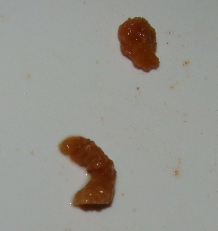 Roundworm In Human Stool