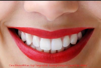 Cara Memutihkan Gigi Yang Sudah Kuning Dengan Cepat Dan Alami