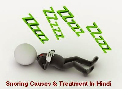Snoring Causes and Treatment In Hindi