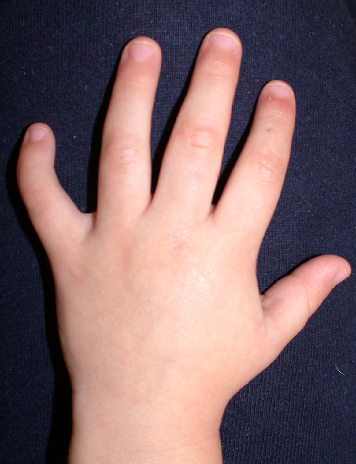 Clinodactyly | Congenital Hand and Arm Differences