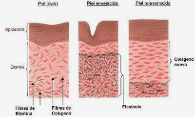 ¿Resultados usar radifrecuencia en la Piel?