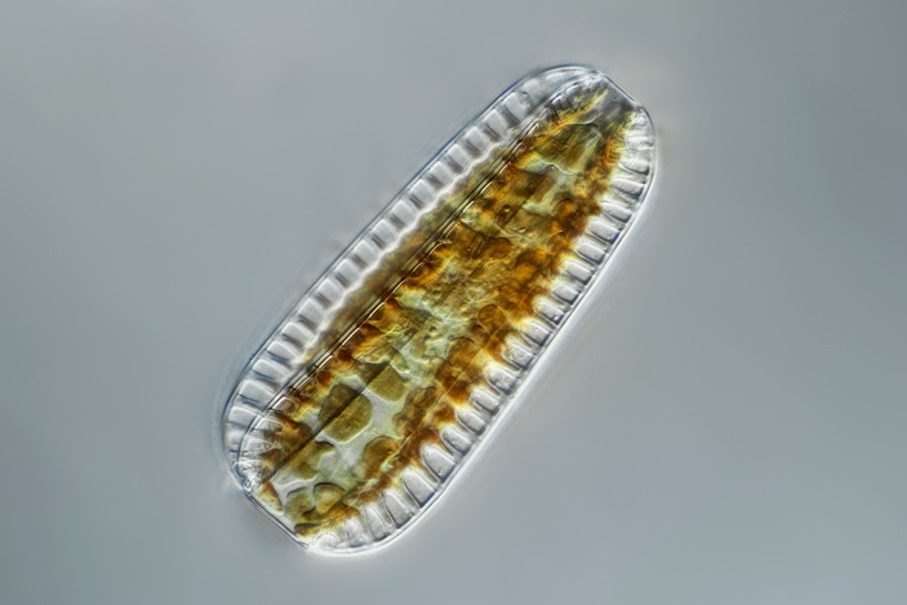 Surirella Robusta under the microscope
