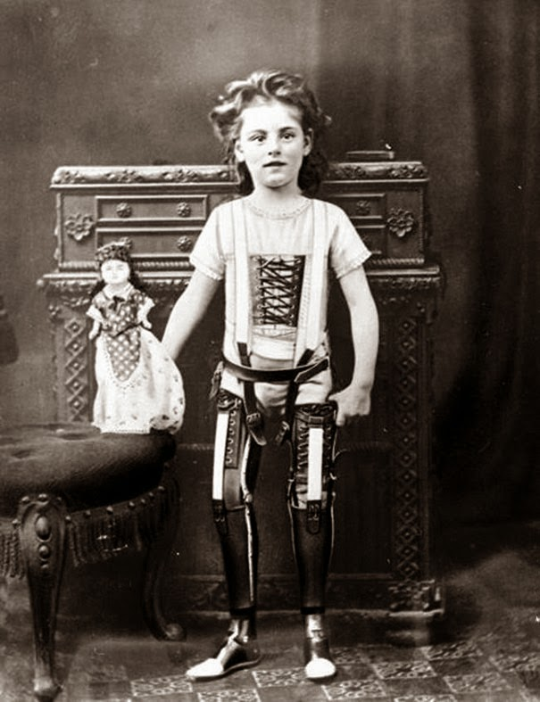 40 Must-See Photos Of The Past - Artificial legs, UK, ca. 1890