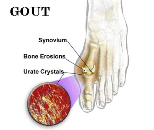 remedies for ankle gout treat gout heat or ice healing diet for gout