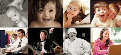 pessoas com Síndrome de Down podem, sim, trabalhar e ter uma vida plena e feliz